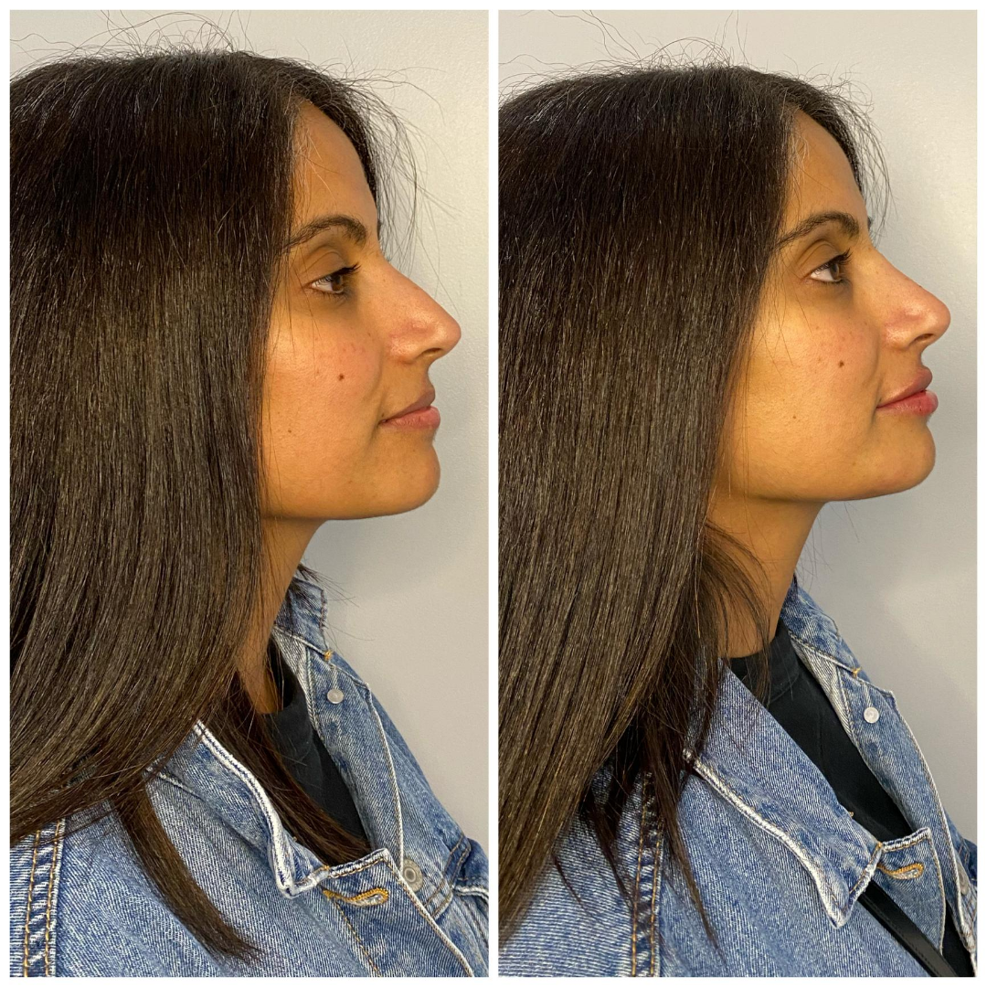 Before & After - Dr. Thiara