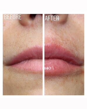 Intraline M3 Plus Lip Treatment
