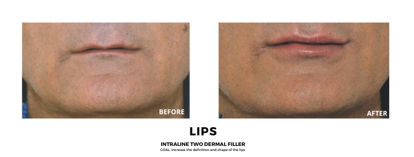Copy of BEFORE & AFTER - Dermal Fillers